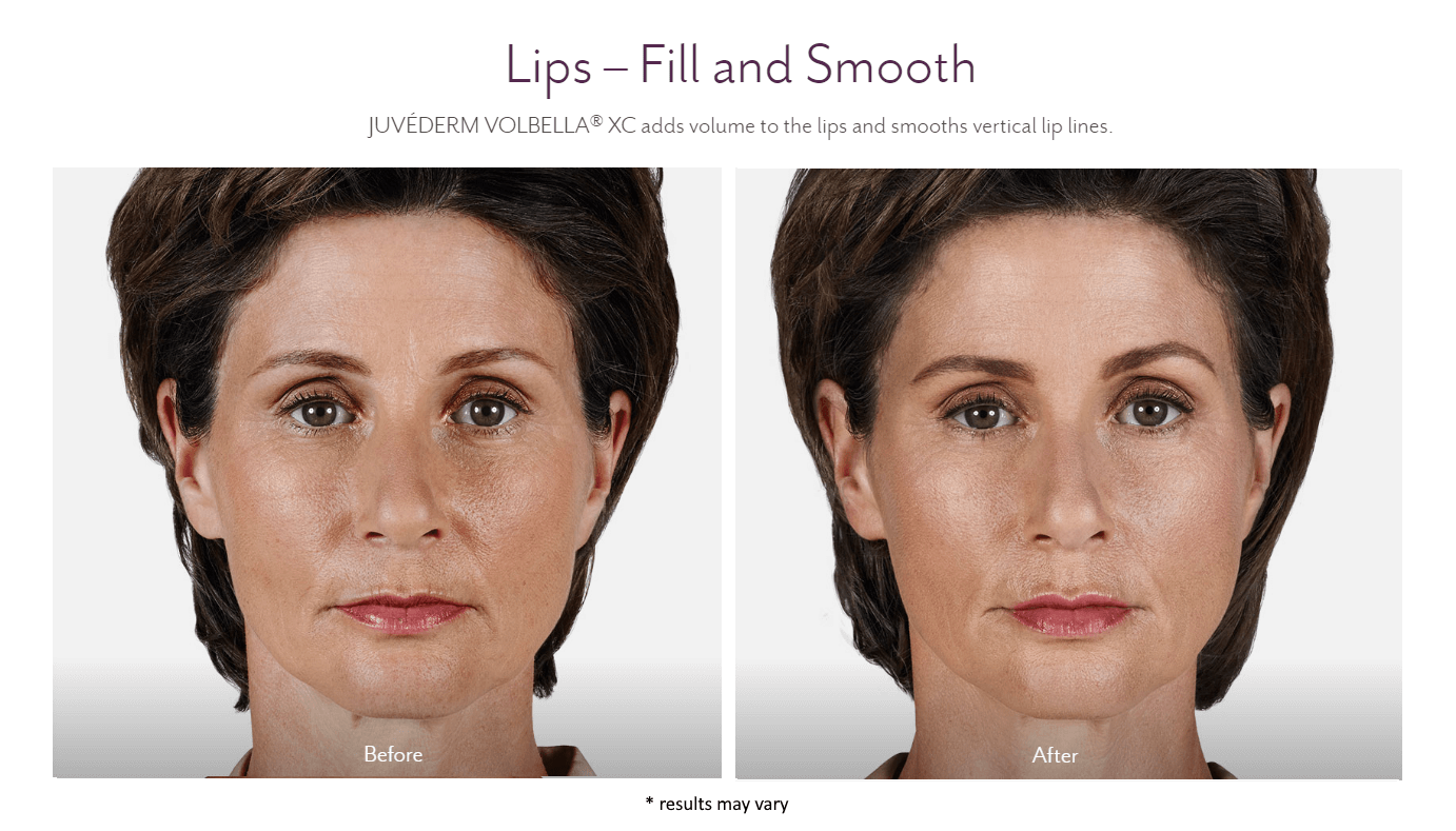 woman lips before and after juvederm volbella xc treatment