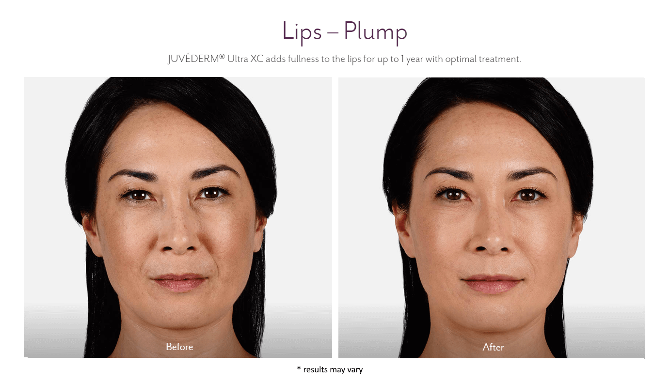 woman with plump lips before and after juvederm ultra xc treatment