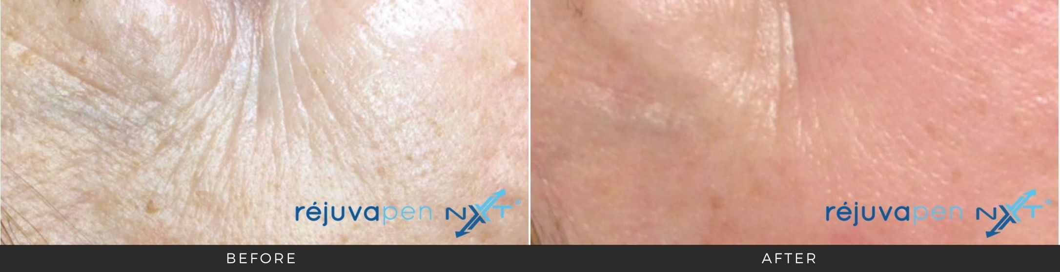 woman's face before and after Rejuvapen treatment in Martinsburg