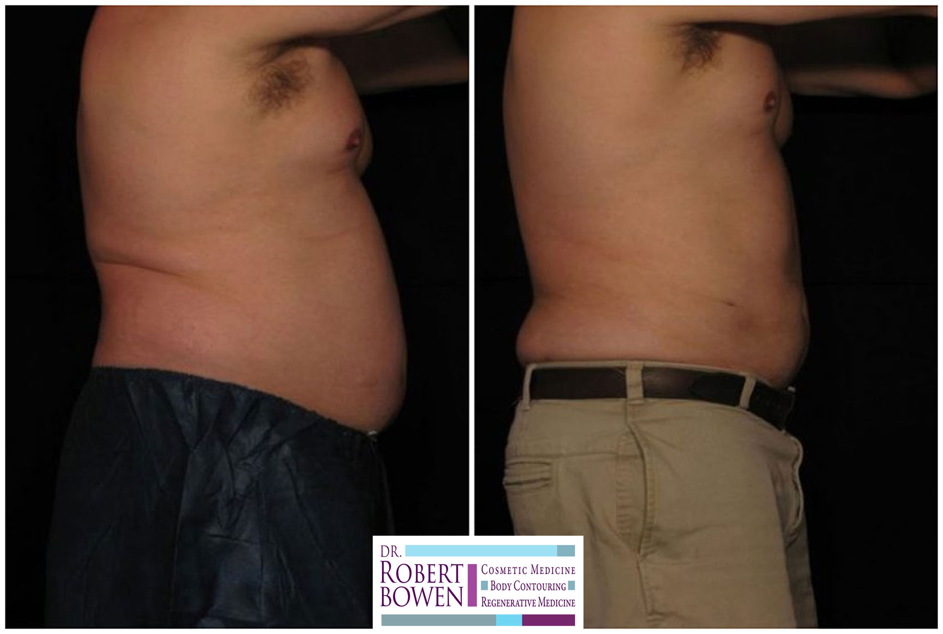before-and-after-photos-purelipo-liposuction15