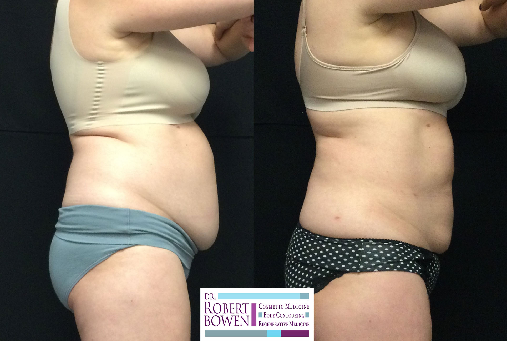 before-and-after-photos-purelipo-liposuction5
